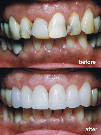 Cosmetic Treatment Before After Image