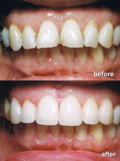 Cosmetic Bonding before after-2